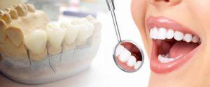 protezele dentare