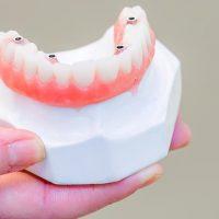 Protezele dentare sau cum sa ai un zambet perfect, mai usor si mai rapid la orice varsta