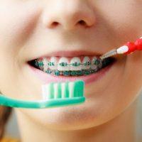 Top 5 lucruri de ştiut despre aparatul dentar!